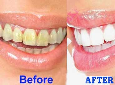 treatment-for-yellow-teeth
